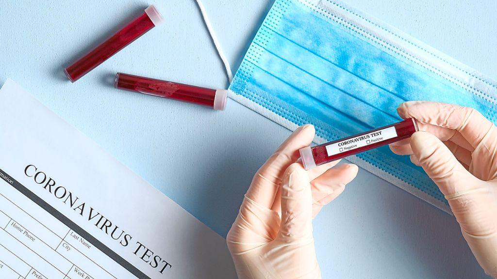 Zollernalbkreis Coronavirus Neues Testlabor Geht An Den Start Balingen Schwarzwalder Bote
