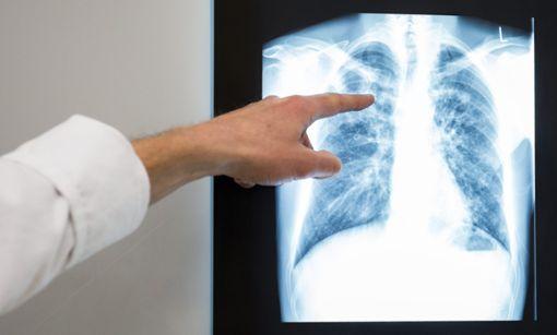 Die Tuberkulose-Bakterien befallen oft die Lunge des Menschen. (Symbolfoto) Foto: dpa