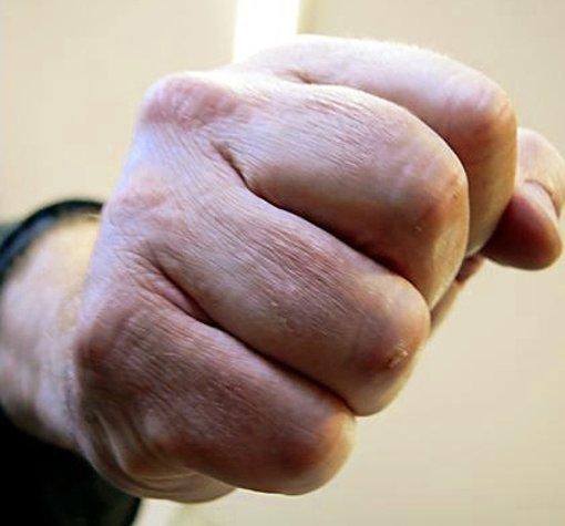 Ein Mann soll in Schramberg seiner Exfrau aufgelauert und sie geschlagen haben. Foto: SB-Archiv